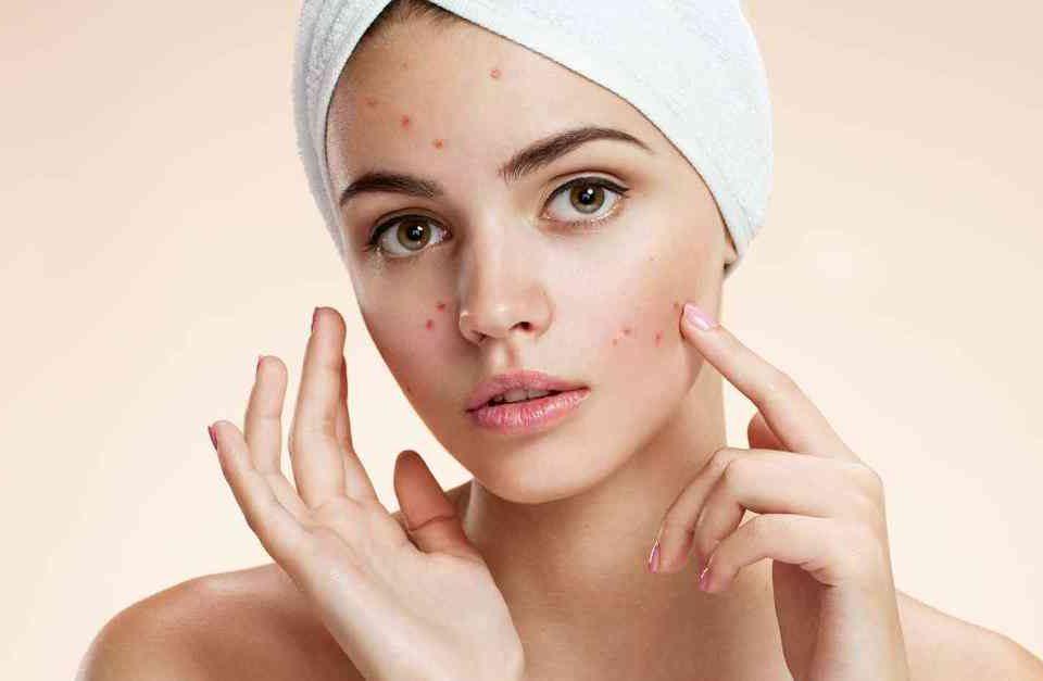 acne-3