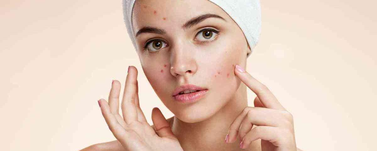 Resultado de imagem para Tratamento de Acne